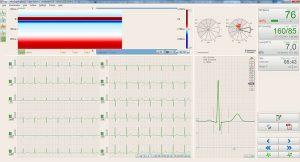 btl-cardiopoint-ergo_600_5_relief_map_388792ba-6379-43ac-b37c-6039f3a156c9_original